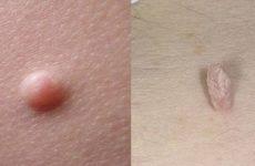 Папилломы и бородавки, как выглядят и какие отличия