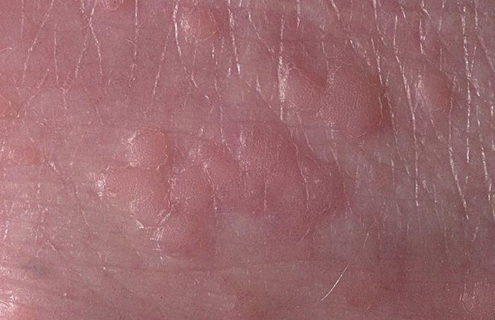 Ploskaya-papilloma