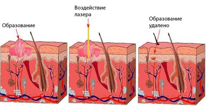 Udalenie-papillomy-lazerom