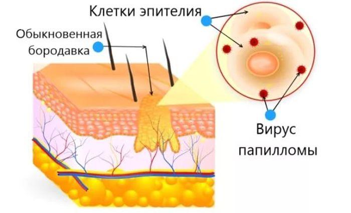 гинекология коды мкб 10
