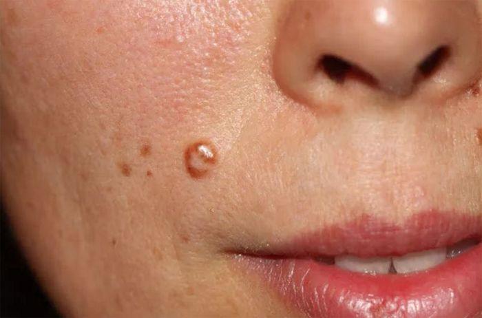 На лице папилломы лечение в домашних условиях