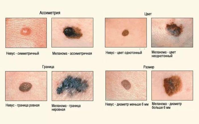 razlichie-mezhdu-papillomoj-i-melanomoj