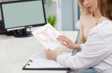 О чем может говорить наличие у женщин вирус папилломы человека в гинекологии?