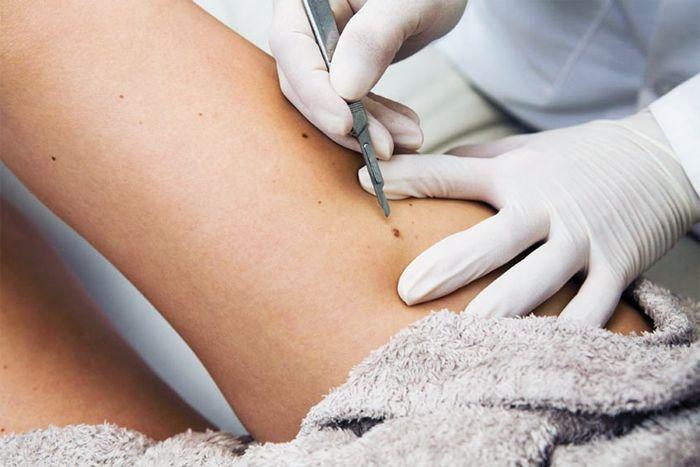 Вывести папилломы с кожи: методы борьбы в медицине и дома