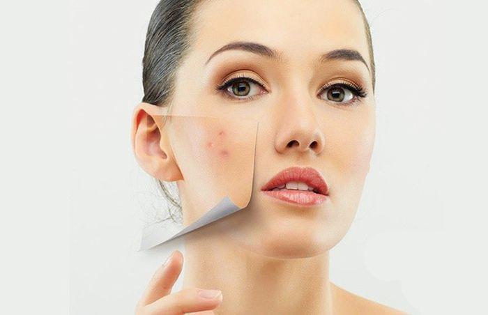 Как избавиться от папилломы на шее и лице: особенности и рецепты
