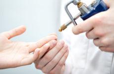 Когда назначается криодеструкция папилломы: цена, показания, отзывы пациентов
