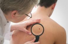 Опасна ли папиллома на спине: причины появления и лечение