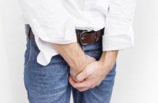 Причины и лечение бородавок в паху у мужчин и женщин