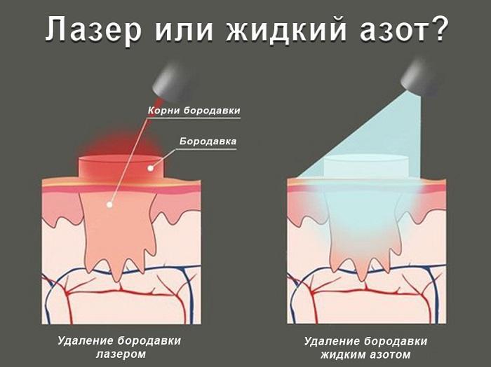 azot-ili-lazer