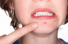 Гарантированные методы избавления от бородавок на лице, как вывести быстро и навсегда