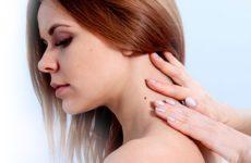 Действенные способы удаления папилломы на шее в домашних условиях