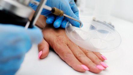 Современные методы, способы удаления бородавок, какой способ рекомендуют врачи