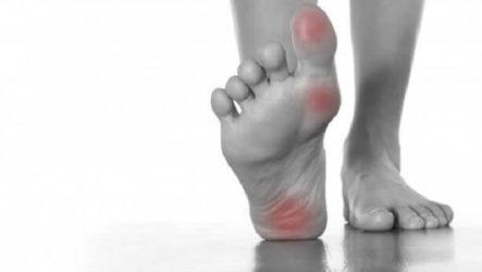 Основные причины возникновения шипицы: симптомы, лечение