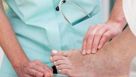 Чем опасны шипицы и к какому врачу обратится при их появлении на ногах?